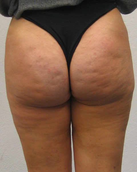 Ass With Cellulite 111